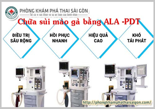sui mao ga co the dieu tri khoi han duoc hay khong