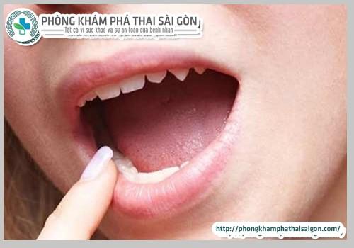 quan-he-bang-mieng-co-bi-lay-sui-mao-ga