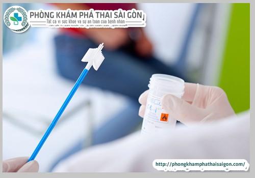 xet-nghiem-PAP-smear